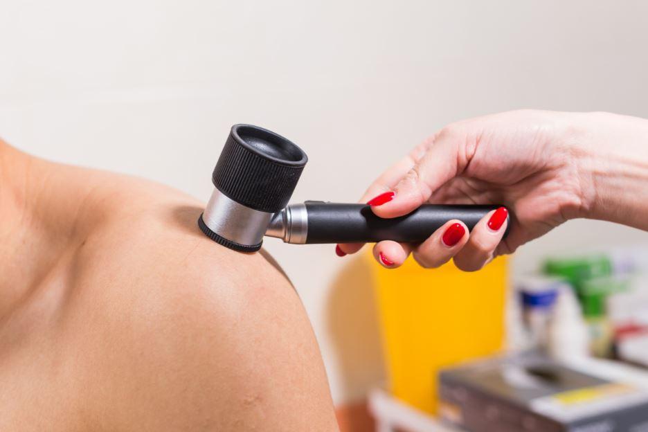 O câncer de pele pode voltar?